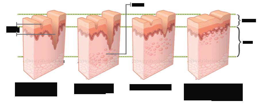 Derma Needling system needle derma roller