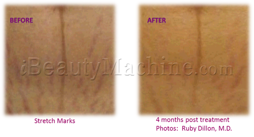 microneedle pen professional, micro needling stretch marks, Dermal needling