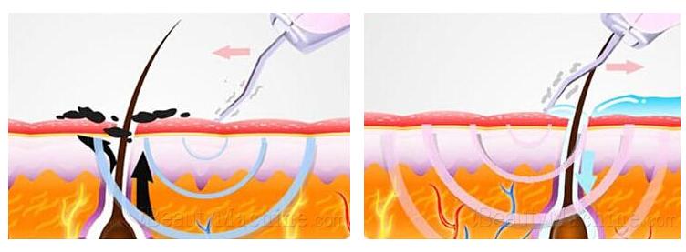 Ultrasound Peeling