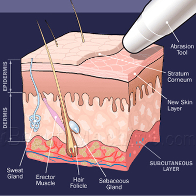 Diamond Dermabrasion working principle