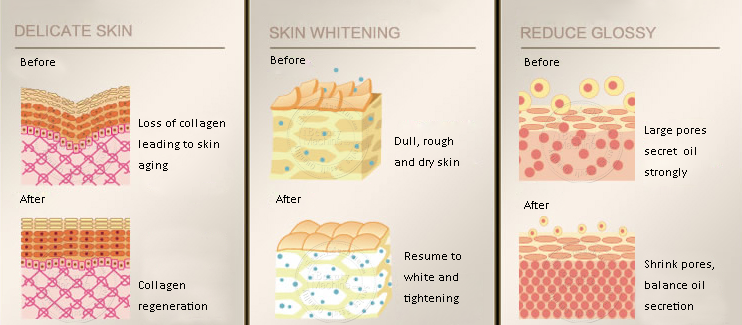 Monopolar RF treatment on skin